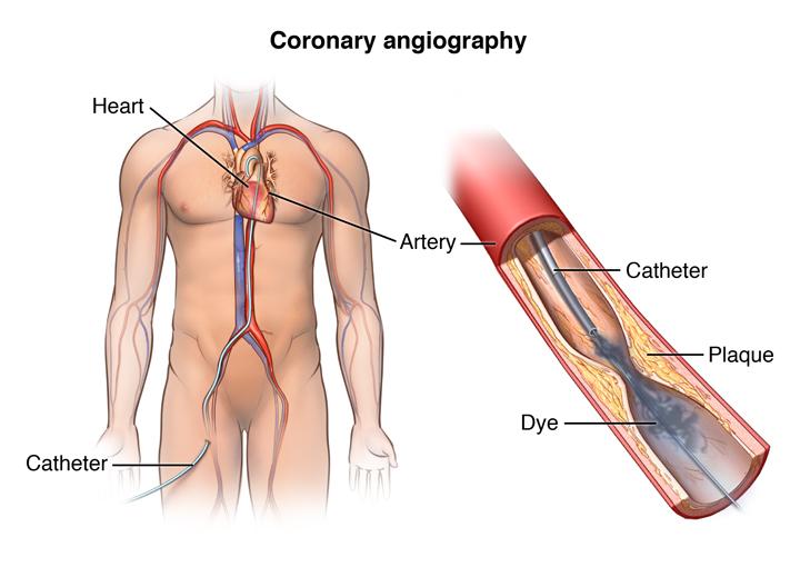 نتیجه تصویری برای angioplasty