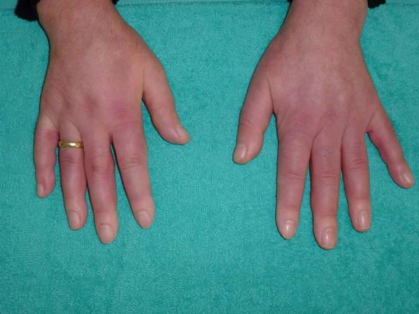 سرد بودن دست ها به دلیلبیماری «اسکلرودرمی»