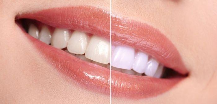 چطور در خانه خمیر دندان زغالی درست کنم ؟