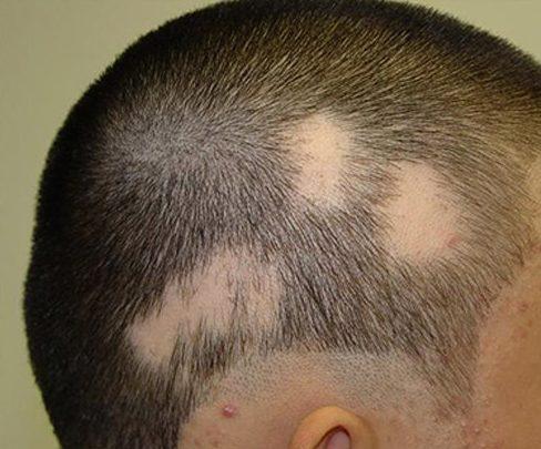 ریزش مو به دلیل آلوپسی آره آتا