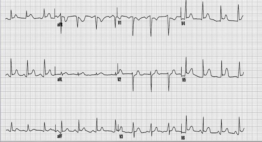 تغییرات نوار قلب در پریکاردیت فشارنده