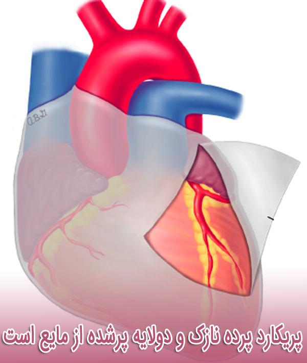 پریکارد پرده نازک و دولایه پرشده از مایع است که سطح بیرونی قلب را پوشش می دهد