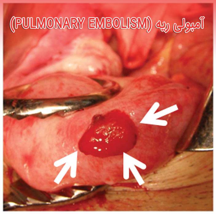 آمبولی ریه (به انگلیسی: Pulmonary embolism)