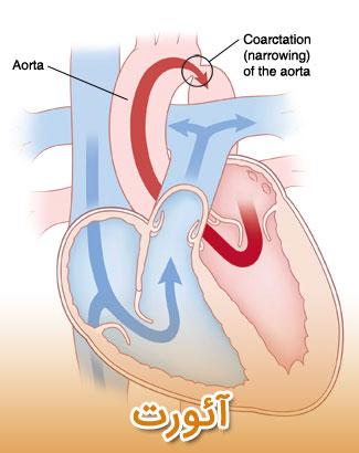 علائم درد قفسه سینه مربوط به مشکلات آئورت