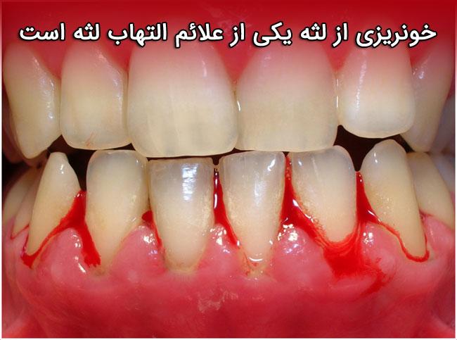 خونریزی از لثه یکی از علائم التهاب لثه است