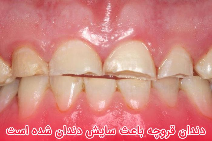 دندان قروچه باعث سایش دندان می شود
