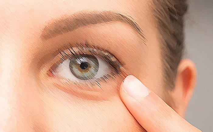 روش های گیاهی و خانگی برای درمان سیاهی و پف دور چشم