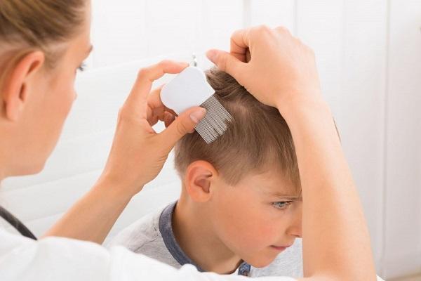 روش خانگی موثر برای از بین بردن شپش سر