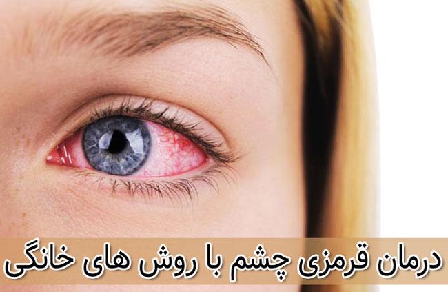 درمان قرمز شدن چشم ها با روش خانگی و گیاهی