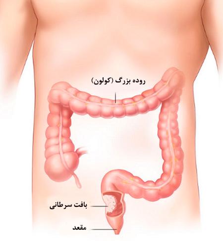 سرطان روده بزرگ - علائم ، دلایل و روش های پیشگیری از سرطان کولون