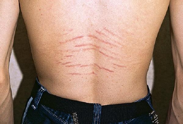 اسید گلیکولیک برای رفع ترک های پوستی