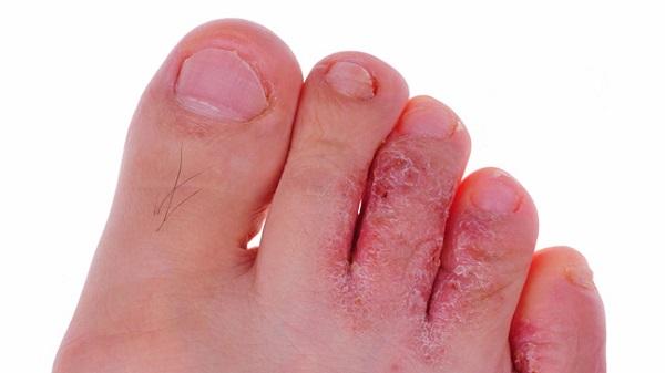 درمان های گیاهی پای ورزشکار