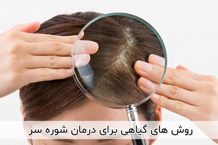 استفاده از روغن نارگیل برای درمان شوره سر