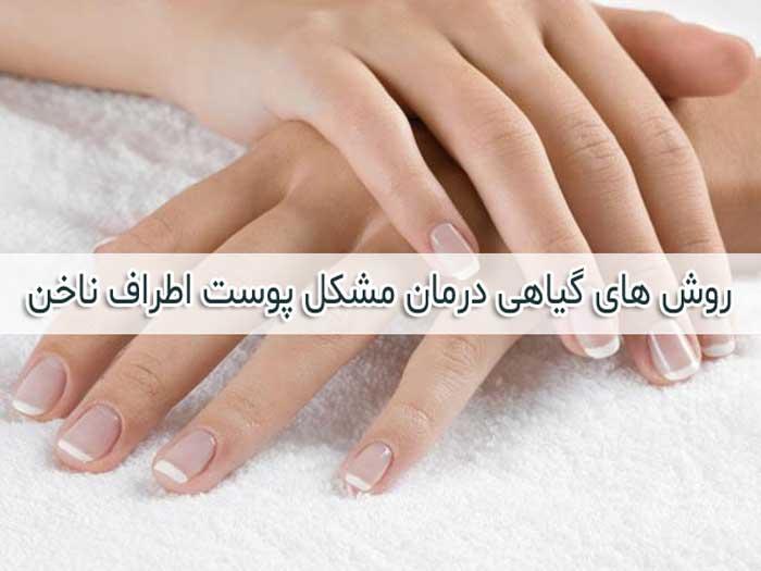 روش های درمان و رفع پوسته پوسته شدن اطراف ناخن