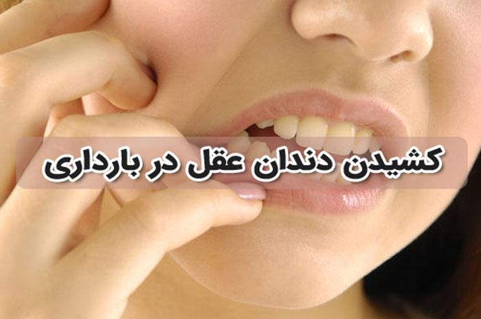 کشیدن دندان عقل در دوران بارداری