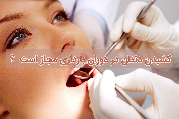 کشیدن دندان در دوران بارداری - پرسش و پاسخ های رایج