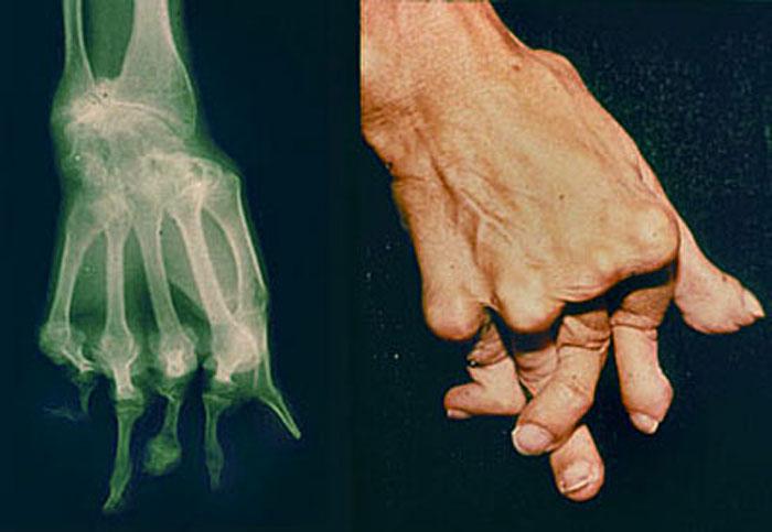 علائم و نشانه های آرتریت روماتوئید