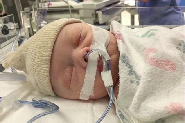 علائم سکته مغزی در کودکان,علت سکته مغزی در کودکان,درمان سکته مغزی کودکان
