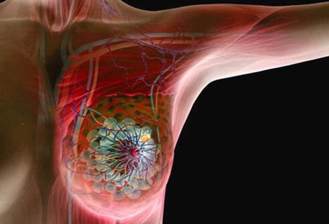 سرطان سینه » دلایل » علائم و روش های درمان