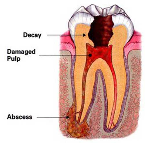 ارتودنسی و ترمیم دندان ها