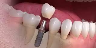 آیا بعد از جراحی ایمپلنت دندان به مراقبت احتیاج داریم؟
