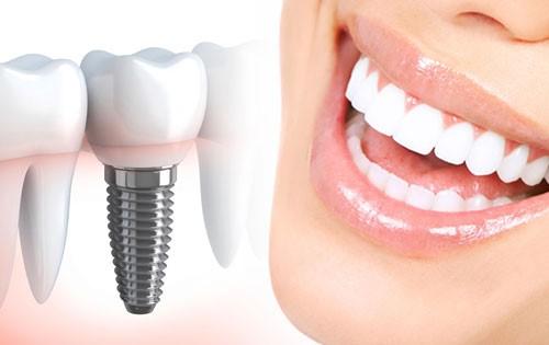 ایمپلنت دندان چیست؟ - برنامه های قبل از جراحی ایمپلنت دندان