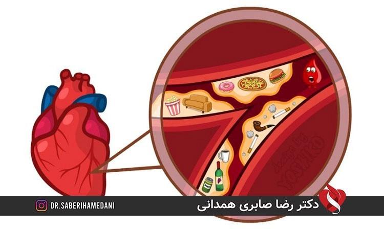 علایم گرفتگی عروق کرونری قلب